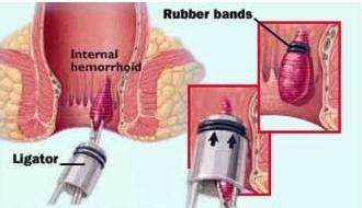 Rubber Band Ligation
