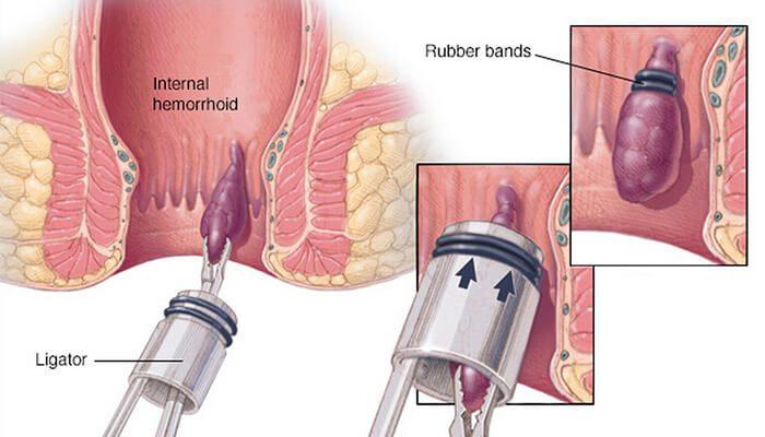 Rubber Band Ligation (RBL)