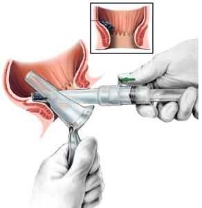 O'Regan Non-Surgical Hemorrhoid Treatment